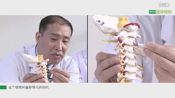 颈椎病到底是怎么回事?
