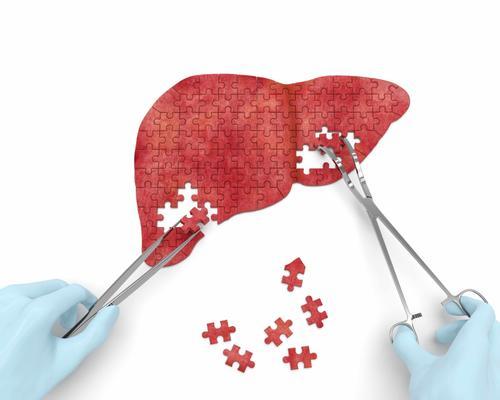 脂肪肝胖瘦都易患,6大原因形成脂肪肝,保持健-轻博客