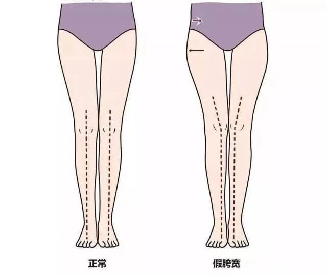 5个腿部动作,改善假胯宽、小腿外翻,视觉上拉-轻博客