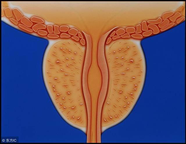 前列腺炎,治疗不及时都会钙化吗?