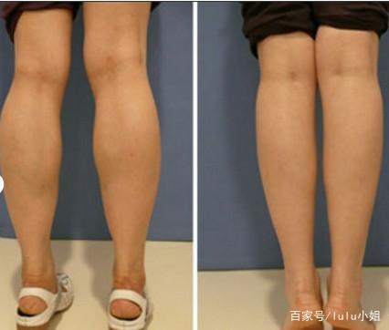 最全瘦腿教程,改掉4个坏习惯,运动配合饮食,-轻博客
